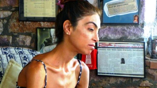 Prenses Hastalığına Yakalandı, 66 Kilodan 38 Kiloya Düştü, Aynalara Küstü